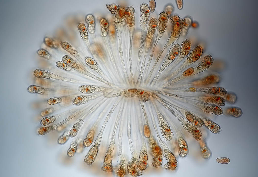 Rotifer colony