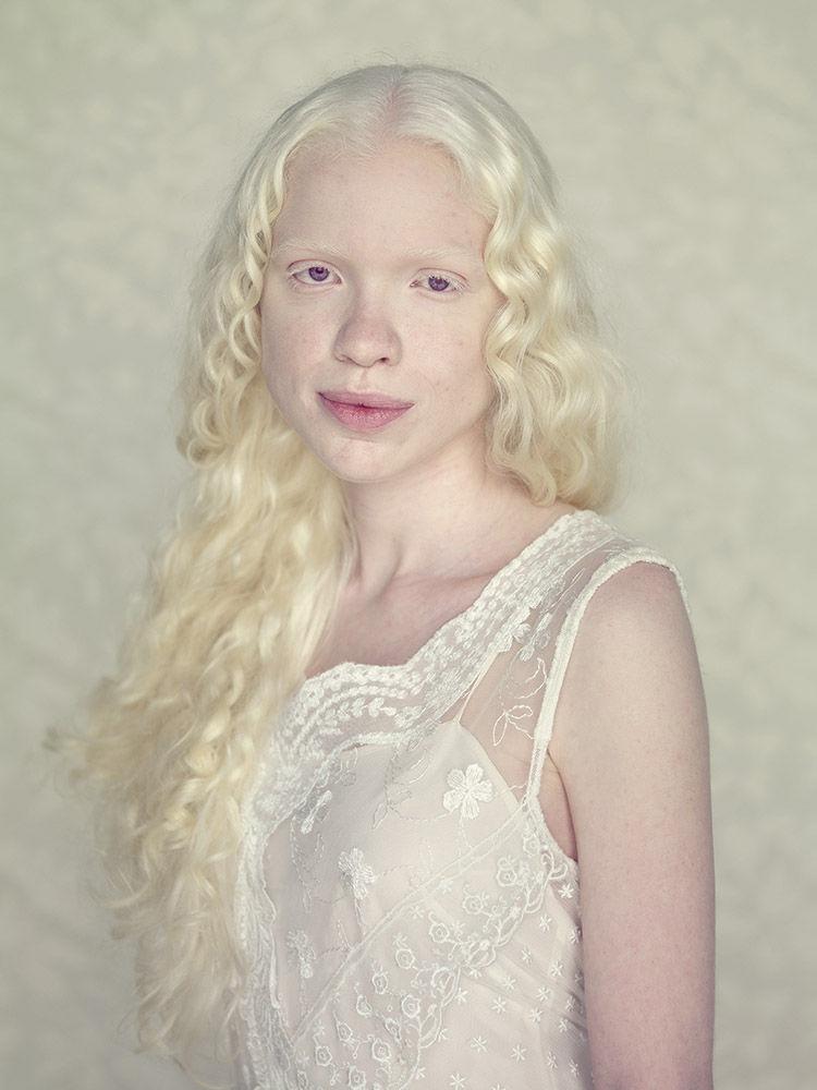 альбиносы люди красивые фото вдуше